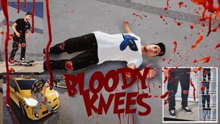 Worn Pants & Blood Knees